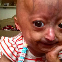 Adalia Rose
