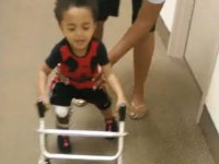 Toddler Amputee Won't Give Up