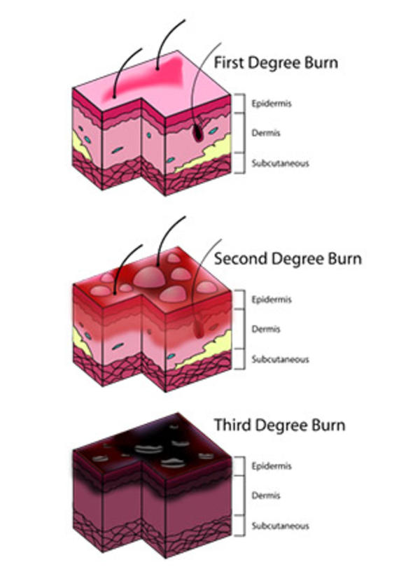 Brief essay on burn classification and treatment