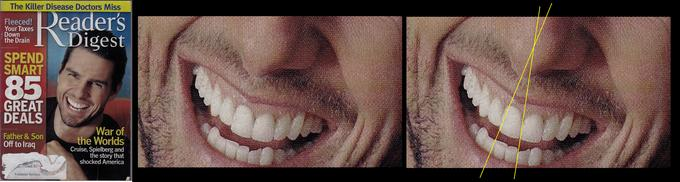 What Scientology does to your teeth.