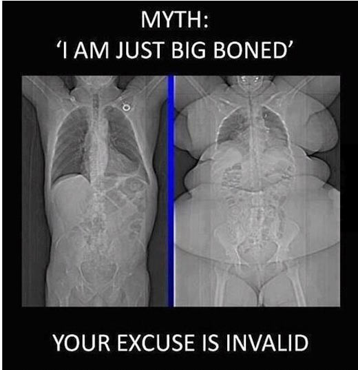 Funny Xray Meme : Big boned excuse your argument is invalid know meme